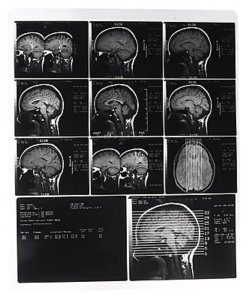 X ray photographs of person s skull uid 1171297